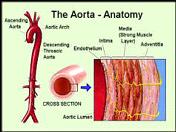 aort2