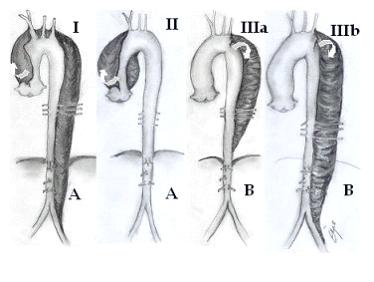 aort6