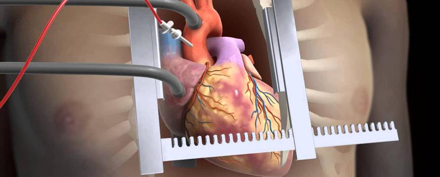 kalp-ameliyat