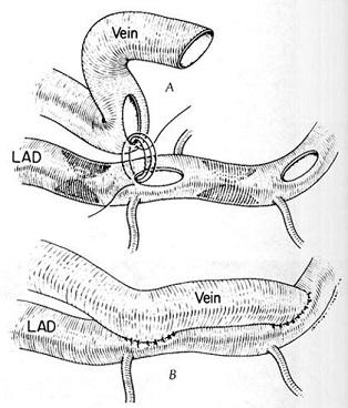kalp ameliyatı4