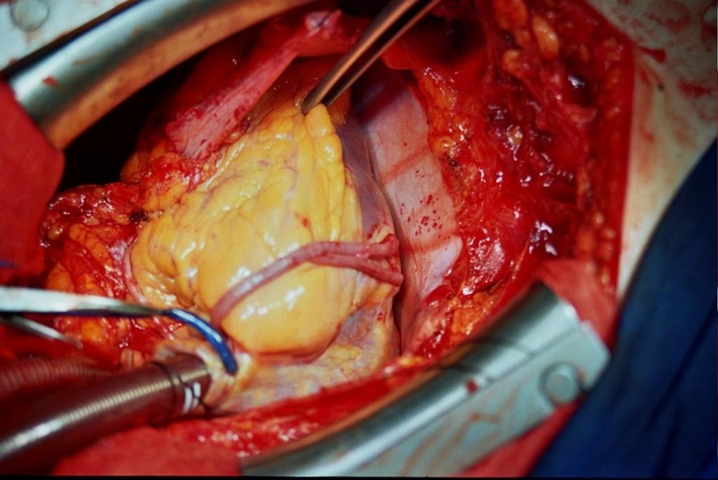 kalp ameliyatı7