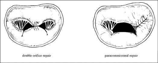 kardoplasti7