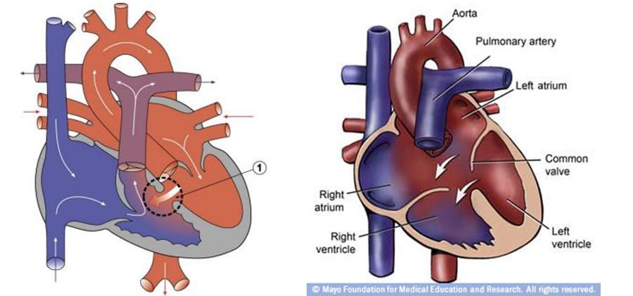 Açık arteryal kanal - sık konjenital kalp hastalığı